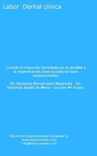 cuando-el-implante-inmediato-no-es-posible-y-la-regeneracin-sea-guiada-se-hace-imprescindible-labor-dental-clnica-spanish-edition