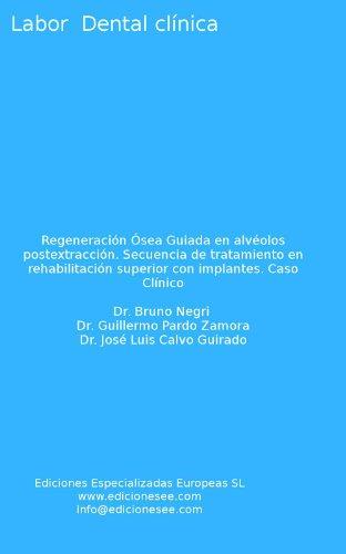 regeneracin-sea-guiada-en-alvolos-postextraccin-secuencia-de-tratamiento-en-rehabilitacin-superior-con-implantes-caso-clnico-labor-dental-clnica-spanish-edition