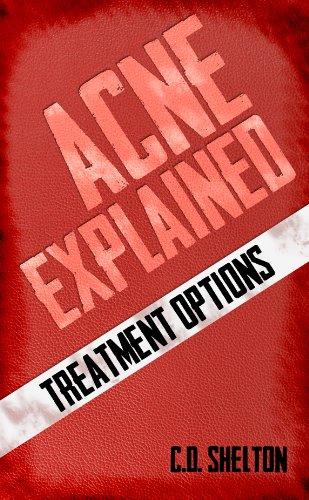 acne-explained-treatment-options