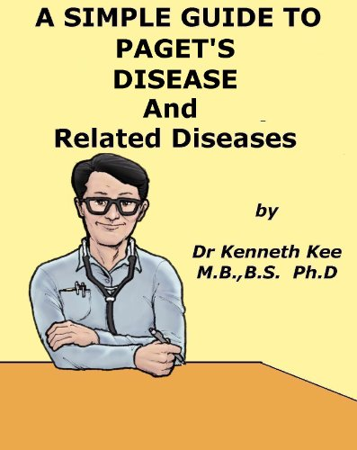a-simple-guide-to-pagets-disease-and-related-bone-conditions-a-simple-guide-to-medical-conditions