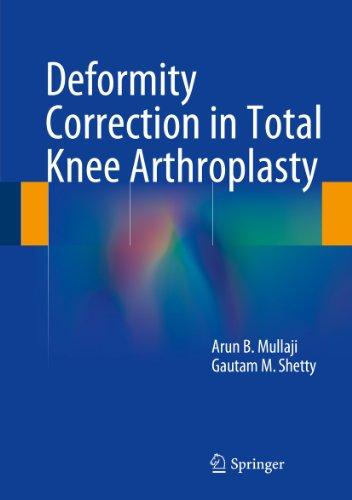 deformity-correction-in-total-knee-arthroplasty