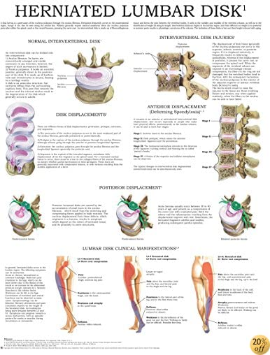 Herniated Lumbar Disk - Quick Reference Chart: Full illustrated