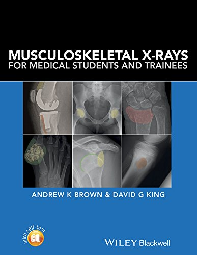 musculoskeletal-x-rays-for-medical-students-and-trainees