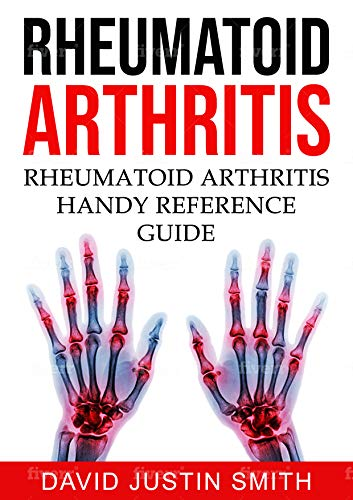 rheumatoid-arthritisrheumatoid-arthritis-handy-reference-guideacute-rheumatoid-arthritis-alternative-treatment-for-rheumatoid-arthritisarthritis-vs-rheumatoid-arthritis