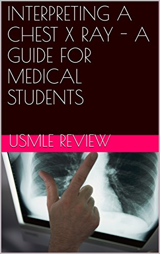 interpreting-a-chest-x-ray-a-guide-for-medical-students