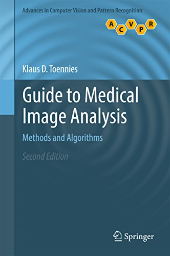 guide-to-medical-image-analysis-methods-and-algorithms-advances-in-computer-vision-and-pattern-recognition
