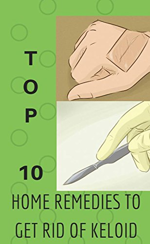 top-10-home-remedies-to-get-rid-of-keloid