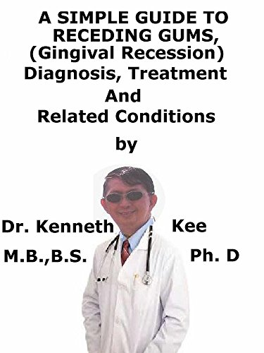 a-simple-guide-to-receding-gums-gingival-recession-diagnosis-treatment-and-related-conditions