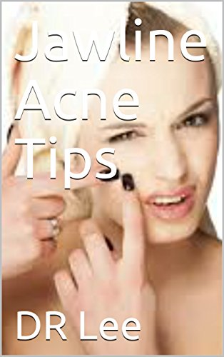 jawline-acne-tips