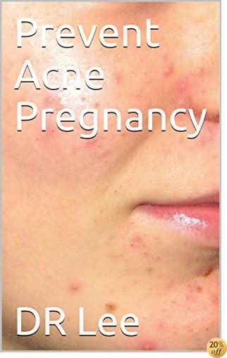 Prevent Acne Pregnancy