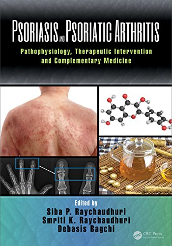 psoriasis-and-psoriatic-arthritis-pathophysiology-therapeutic-intervention-and-complementary-medicine