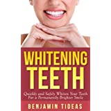 Whitening Teeth: Quickly and Safely Whiten Your Teeth for a Permanently Brighter Smile (White Teeth, Whitening Teeth, Opalescence)
