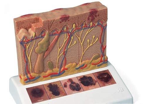 3B社 病理学模型 皮膚癌(ガン)モデル (j15)