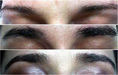 M2 Beauté Eyebrow Renewing Serum 5ml, 1er Pack (1 x 5 ml)