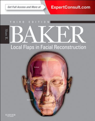 Local Flaps in Facial Reconstruction 2nd Edition