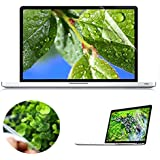 SZON Laptop Anti-Fingerprint High Quality Screen Protector Guard Film Cover For Dell Inspiron 3558 15.6-inch Laptop